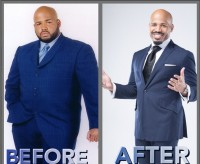 Dr  Joseph L  Willams Before  After